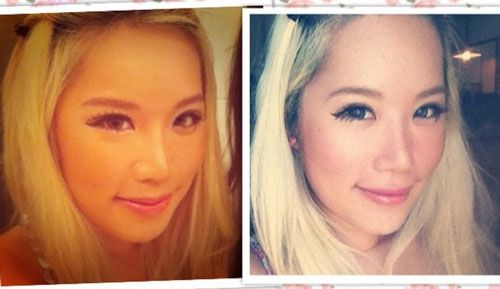 Xiaxue Before and After Plastic Surgery | http://plasticsurgeryfact.com/xiaxue-plastic-surgery-before-and-after/