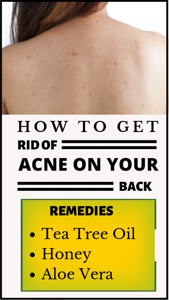 how to remove acne from body