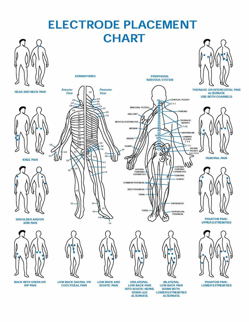 Tens electrode placement chart health and wellness pinterest