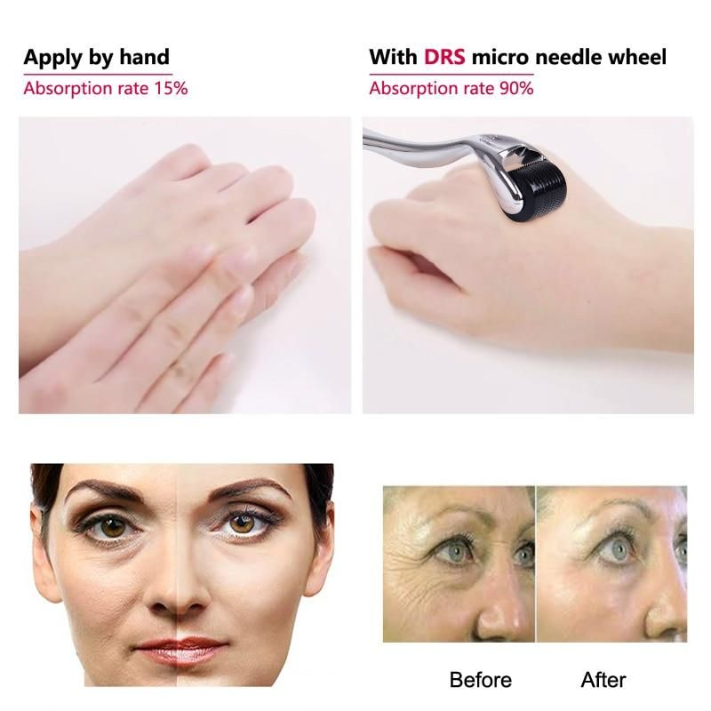 Derma roller micro needle skin care and body treatment tool ...