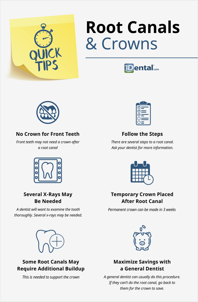 Do You Need A Root Canal Or Tooth Crown Here Are Some Quick Tips