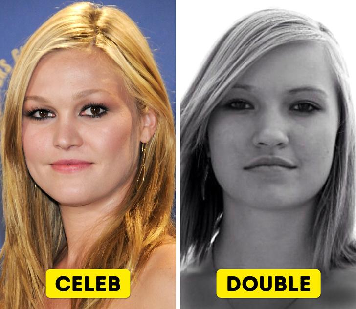 varicoza fotografiilor de celebritate
