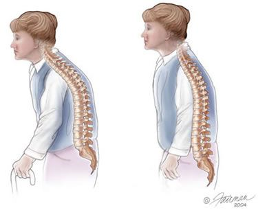 32+ Can a chiropractor help with osteoporosis ideas in 2021