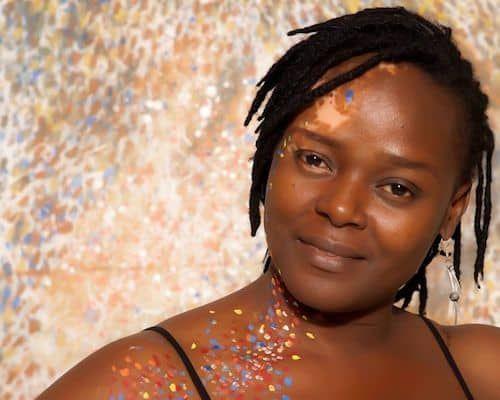 Ogo Maduewesi: The Vitiligo Warrior
