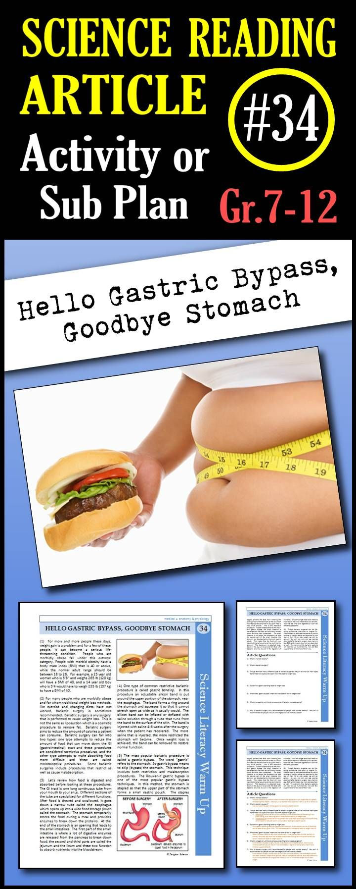 In This Article Students Will Learn About Morbid Obesity And The Two Main Types Of Bariatric Procedure Science Reading Science Fair Projects Homeschool Science