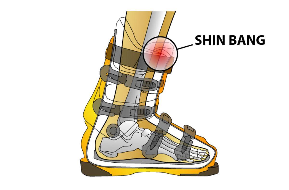 Pin On Skiing Tips