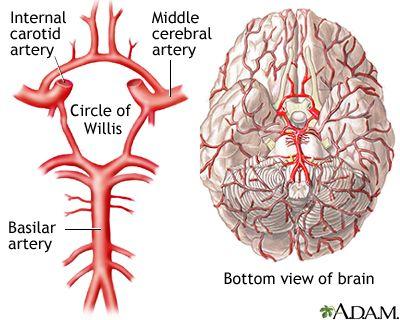 círculo de willis aneurisma emedicina diabetes