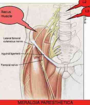 entrapped nerves treated at the peripheral nerve center at mount, Muscles
