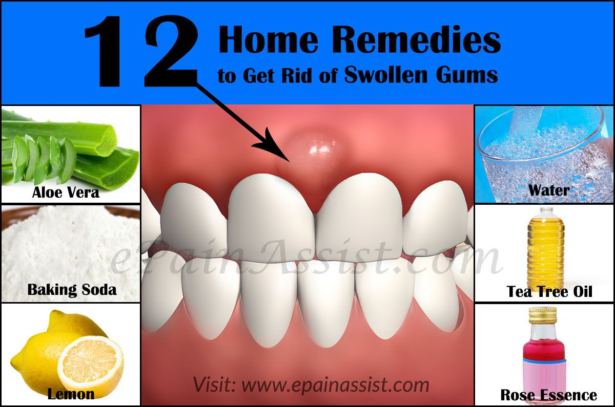 Home Remedies To Get Rid Of Swollen Gums Swollen Gum Gum Disease Treatment Swollen Gums Remedy