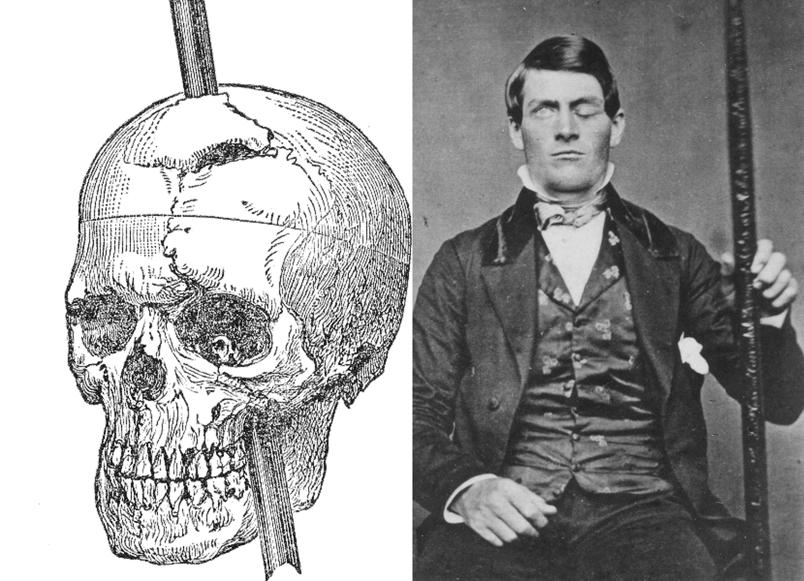 Phineas Gage Was A Railway Worker Whose Life Changed
