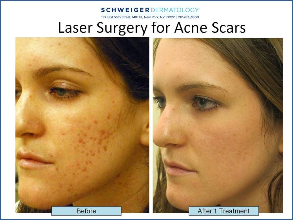 how much is laser for acne