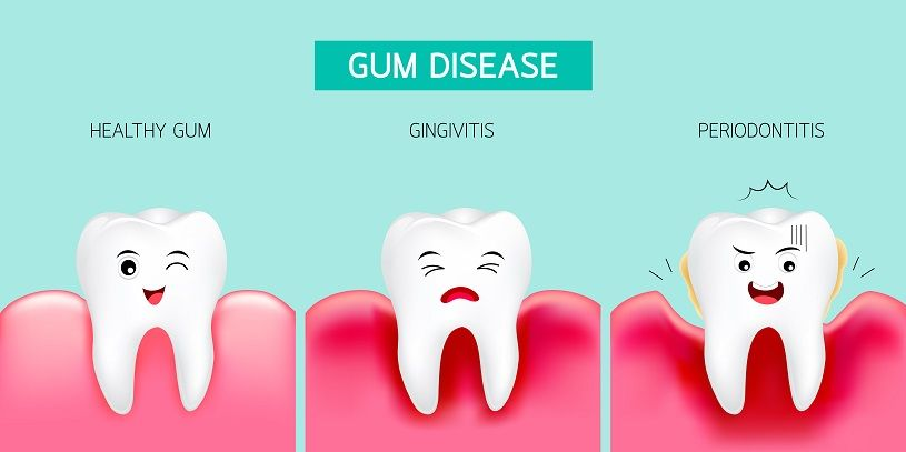 11 home remedies to treat gingivitis in children