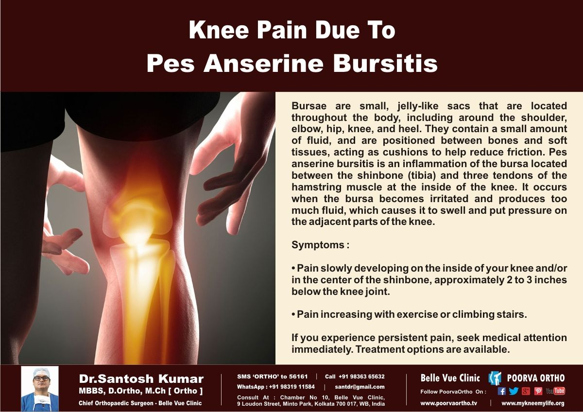 Knee pain diagnosis test - Knee Pain Due To Pes Anserine Bursitis Check If You Have These Symptoms Call Helpline Visit Www Tv Sms Ortho To 56161