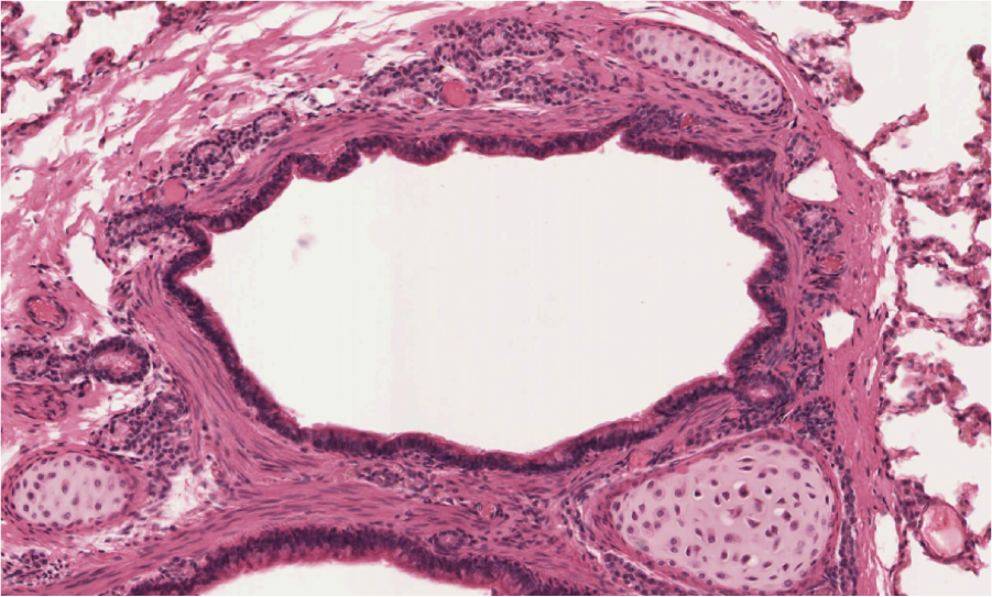 bronchi histology labeled google search res tract - 901×543