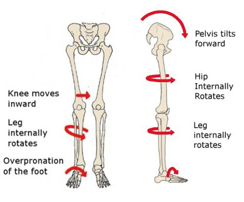 379d60d960 4 causes of knee pain that have nothing to do with the knee | jessephysio