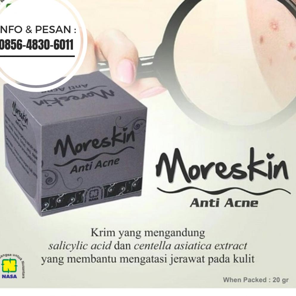 HP WA 085648306011 Jual Moreskin Acne di Malang Jual