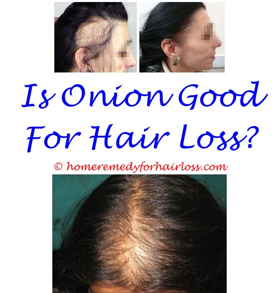 small flowered willow herb hair loss - can having long hair cause ...