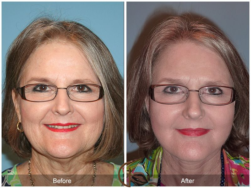 The Natural Facelift by Dr. Kevin Sadati offers the full benefits of a traditional facelift without the extended downtime or need for general anesthesia!