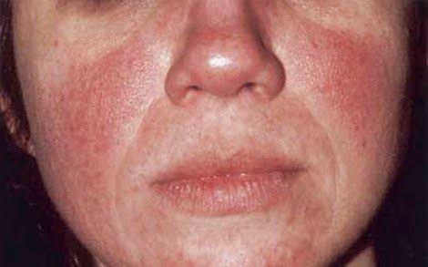 Remedios Caseros Para Curar La Rosacea Rosacea Tratamiento Cura La Rosacea En 60 Dias Rosácea Tratamientos Naturales Rosacea Tratamiento