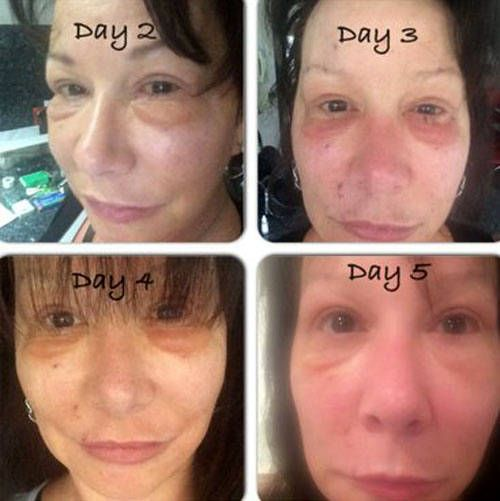 Lower Facelift Recovery Days 2 5 Facelift Recovery Liposuction