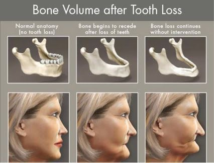 Bone Volume After Tooth Loss