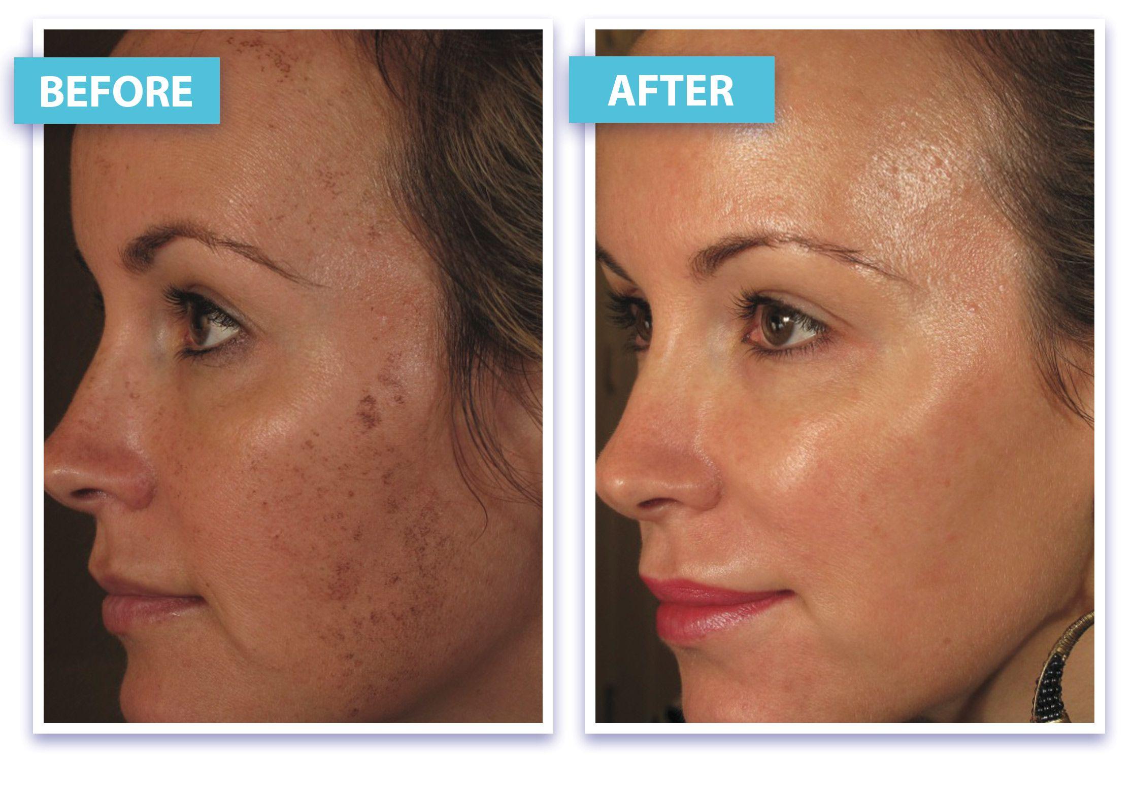 Before And After Laser Skin Rejuvenation Laser Skin Rejuvenation Natural Skin Tightening Laser Skin