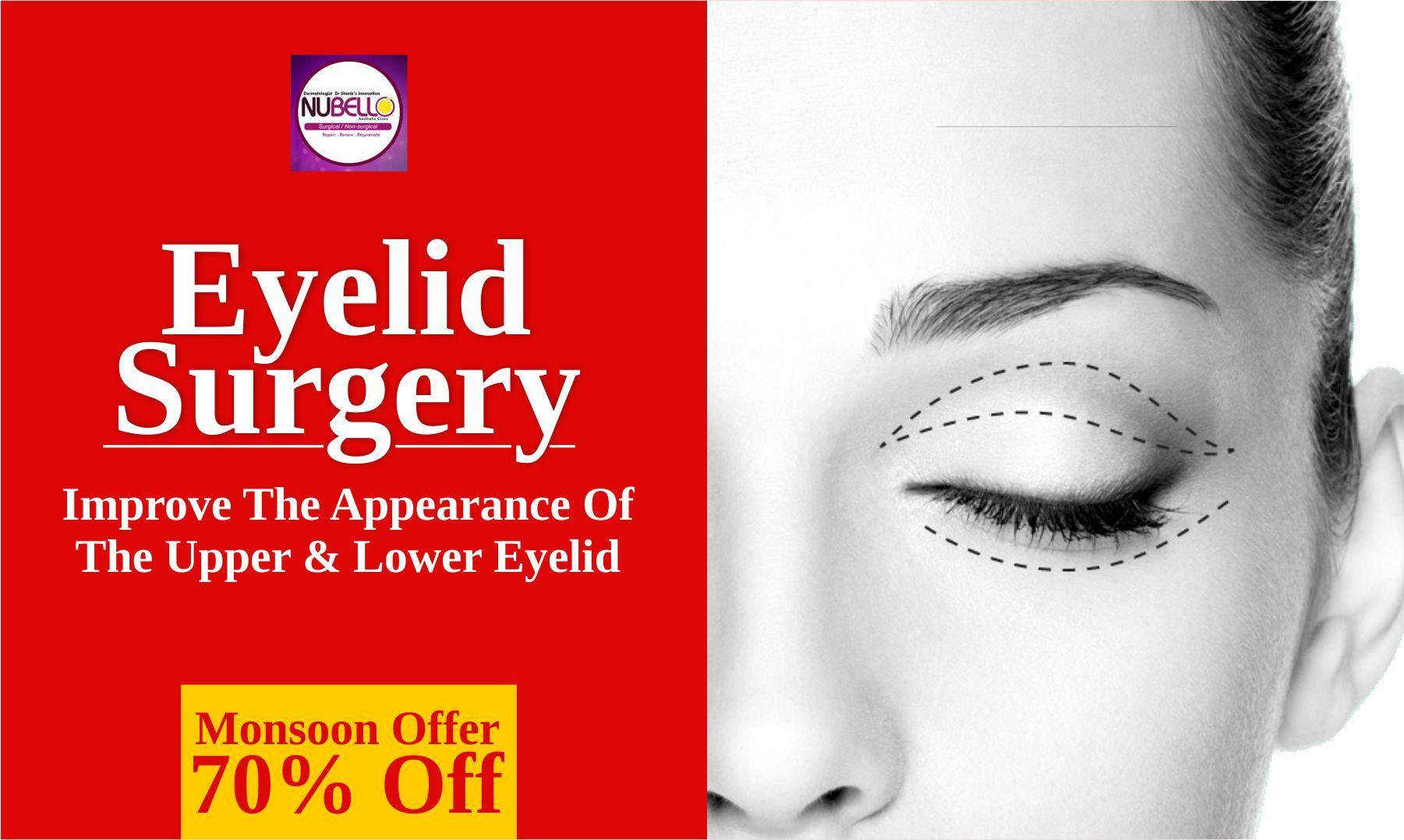 Eyelid surgery in mumbai beautiful eyes eye surgery
