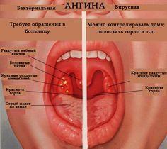 Лечение ангины и воспалений горла без антибиотиков