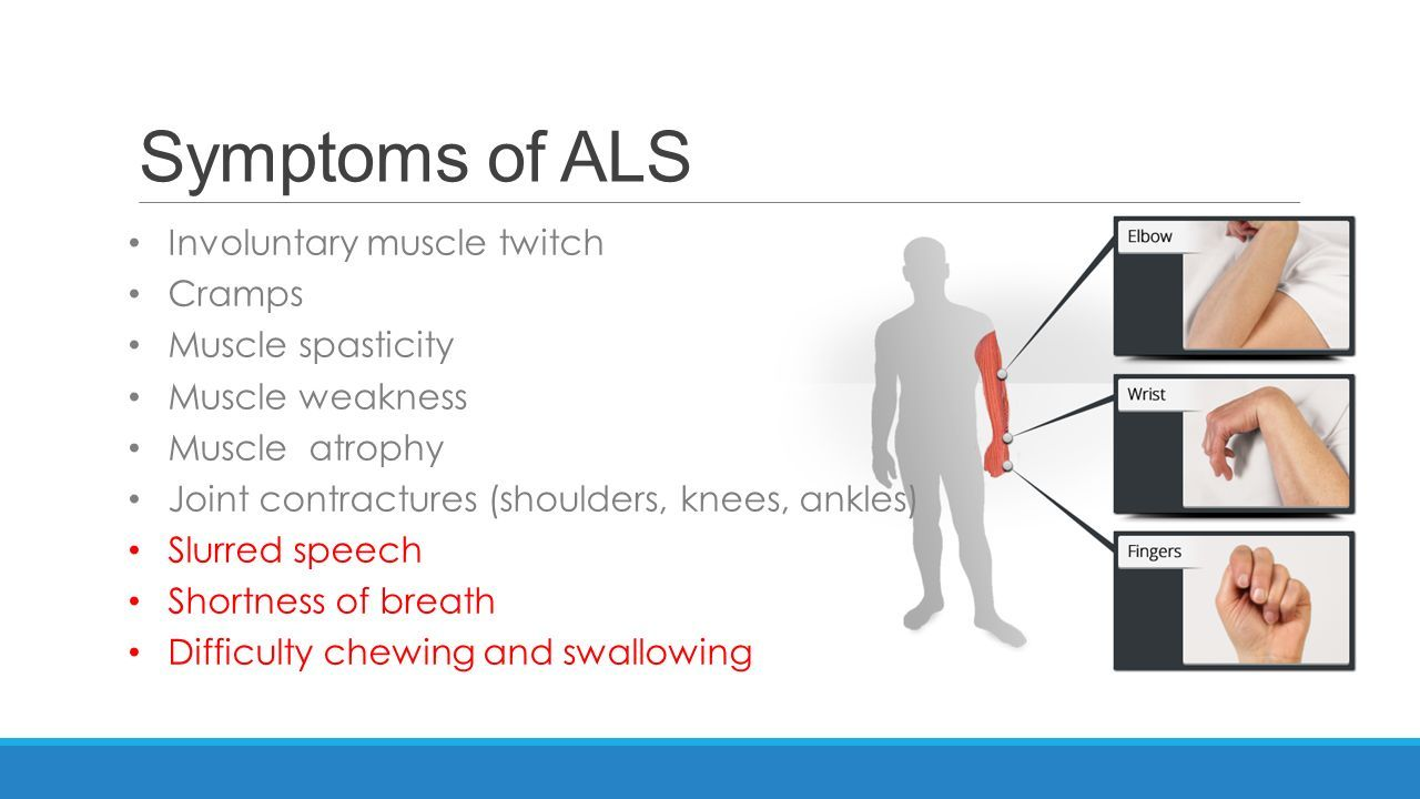 Symptoms Of #als  Stem Cells Treatment  Pinterest. Coated Tongue Signs. Affected Cancer Signs. Early Signs. Doesn Signs. Quiz Signs. Ridges Signs. Inner Ear Signs. Cystic Fibrosis Signs Of Stroke