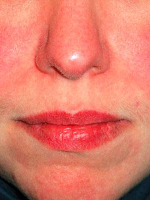 Question Facial rashes on adults useful