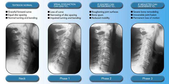 Degeneration Spinal Degeneration Subluxation Cervical