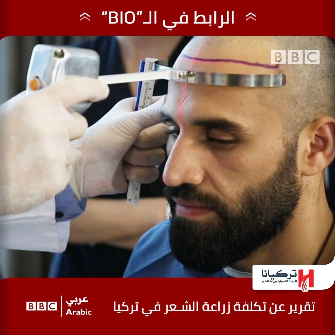 كلفة زراعة الشعر Bbc News عربي