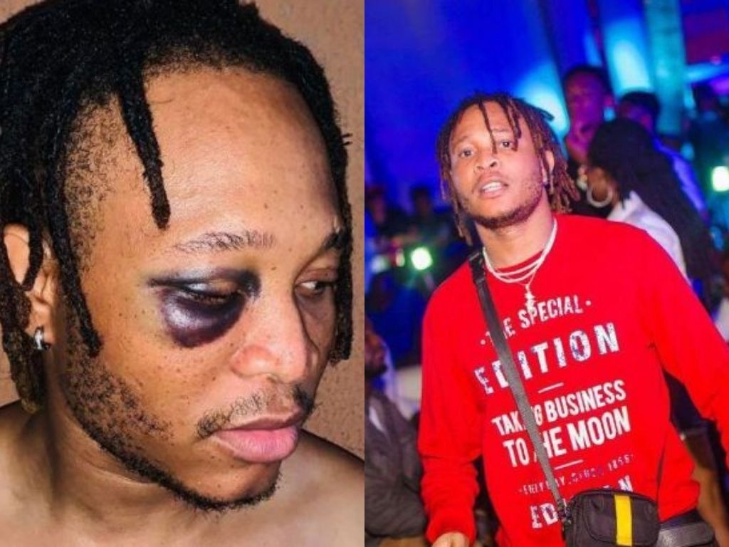 Picture Of Viktoh With 'Swollen Eye' After Police Assault