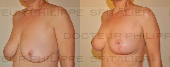 Skin stretching breast implants