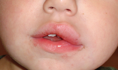 Mouth Ulcer Causing Swollen Lip in 2020 Mouth ulcers