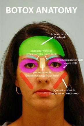 Danger of botox facial atrophy images 138
