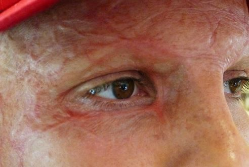 He's got ...Niki Lauda Eyes...