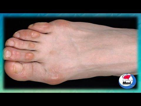 Como Quitar Los Callos De Los Dedos De Los Pies Callos En Los Pies Tratamientos Naturales Callosidades En Los Pies Callo En El Pie Dedos De Los Pies