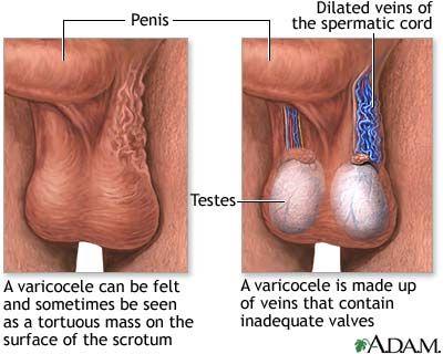 varicoseza cu ulcer
