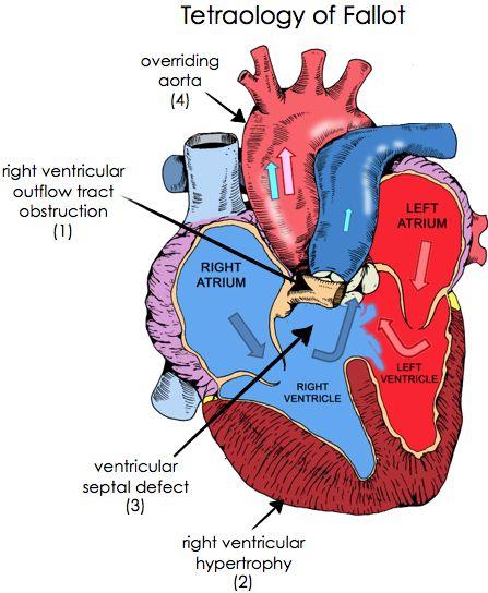 Tetrology Of Fallot 1 Pulmonary Stenosis 2 Right Ventricular