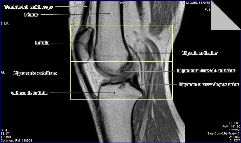 La resonancia magnética de rodilla puede detectar cambios, lesiones ...
