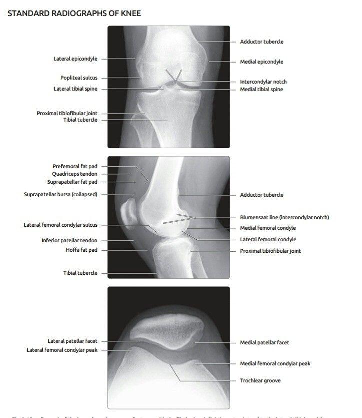 Pin de dani gamm en anato info   Pinterest   Radiología y Rayo