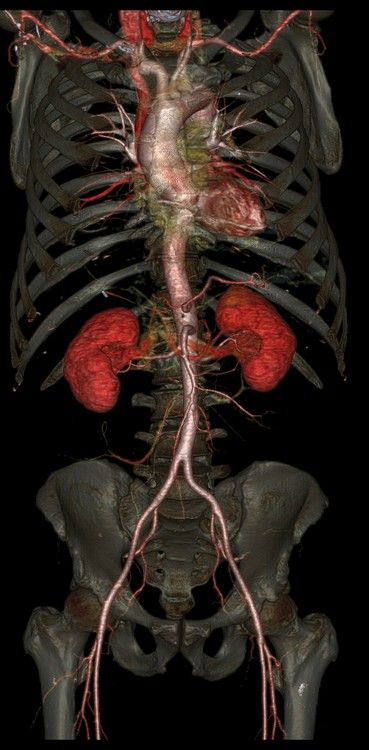 New CT Reveals Inner Structures of Body in Exquisite Detail ...