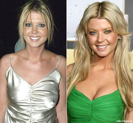 E Breast Implants Before And After TARA REID PLASTIC SURG...