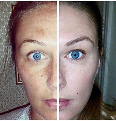 Rodan And Fields Vs Nerium Products Review The Anti Aging Skincare Market Is A Billion Dollar Industry And Th Rodan And Fields Reverse Rodan And Fields Rodan