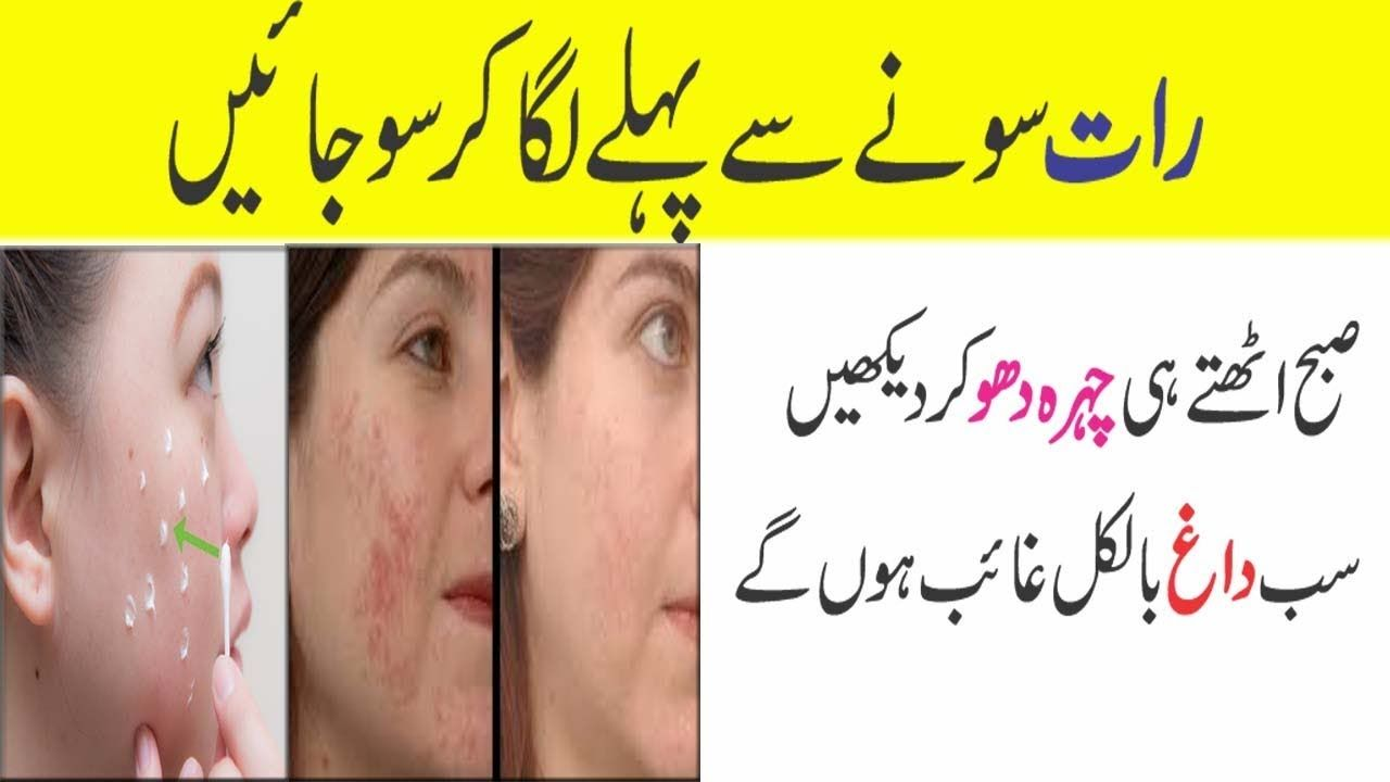 Pin On Anam Home Remedy