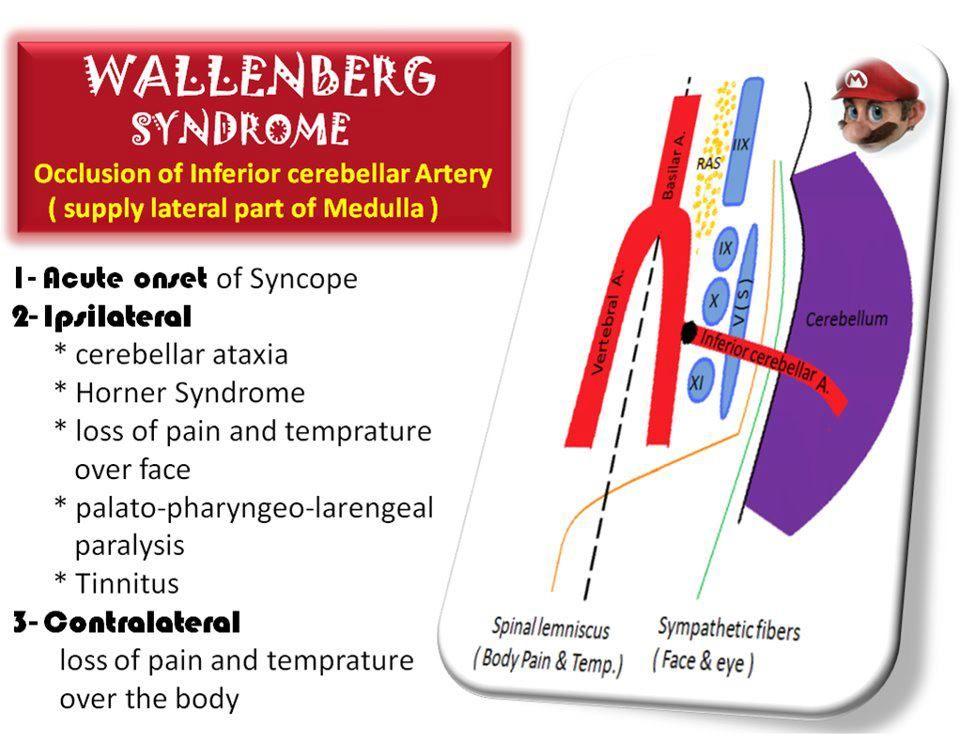 wallenberg syndrome - Google Search   Nurse   Pinterest