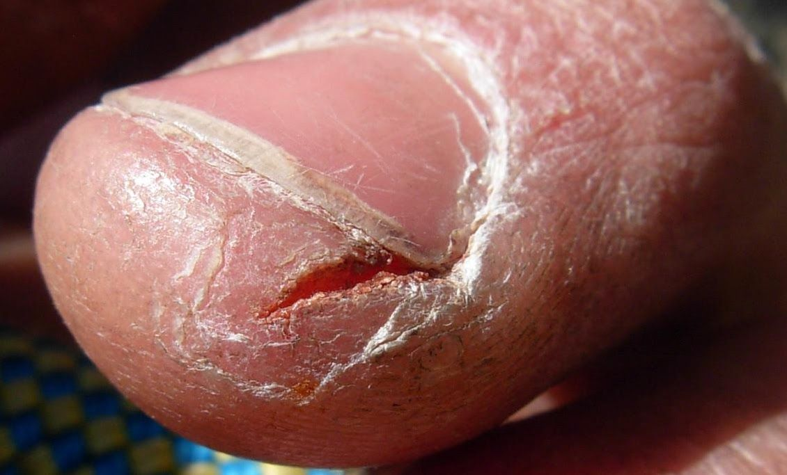 Image result for cracked skin thumbs