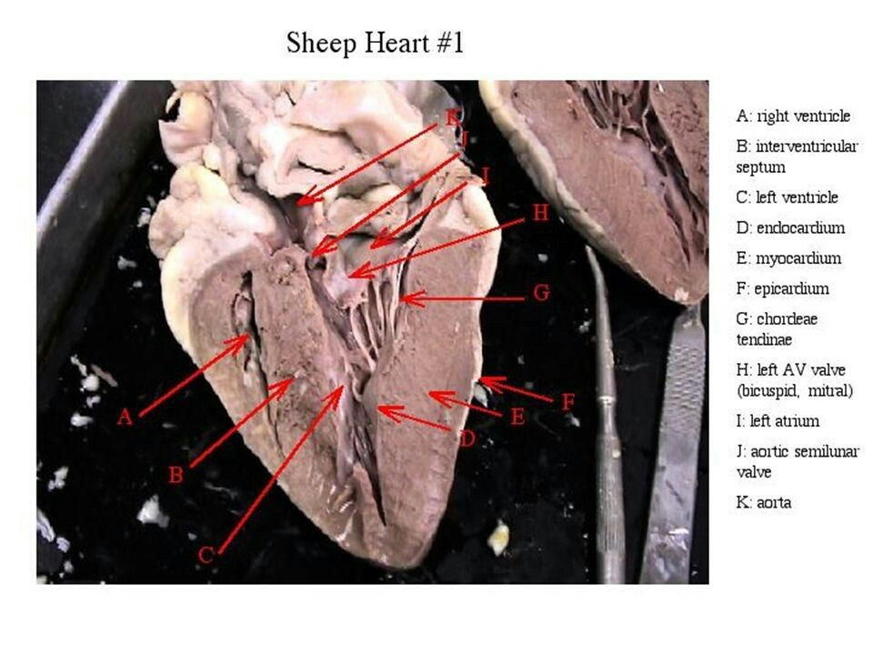 Pin by Elizabeth Jacobs Herbst on The Heart anatomy and physiology ...