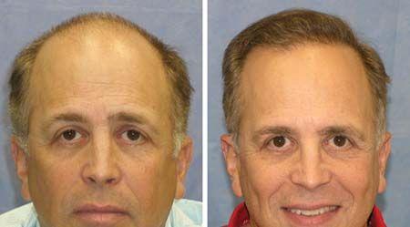Transplante capilar, tratamiento, consejos y técnica FUE